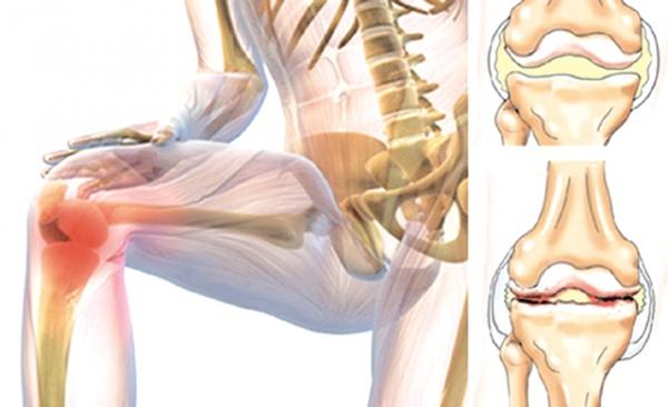 Суставы надо защита суставов при беге