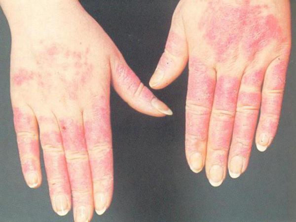 бывает аллергия на мороз
